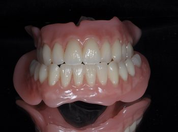 Full upper and Lower dentures (2)