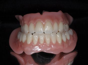 Full upper and Lower dentures (3)