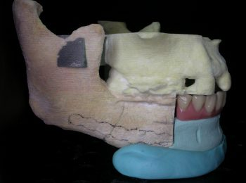 Mandible rebuild (3)