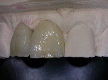 2 incisor 0001
