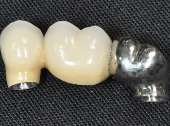 3 unit Implant bridge (3)