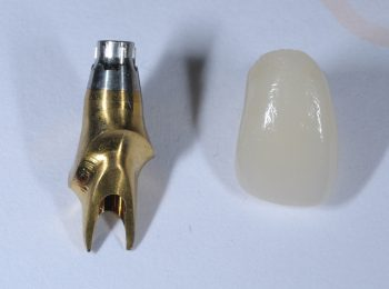 Implant crown and Abutment (2)