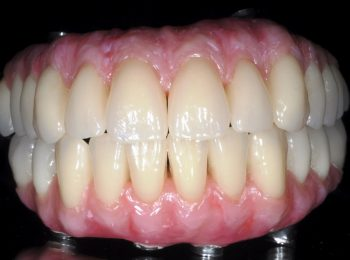 Implant Bridges - Nobel Biocare PIB bridges with Schottlander Enigma Gingival Composit